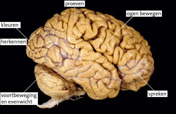 baby zonder hersenen